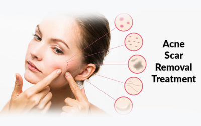 Facts About Pimples