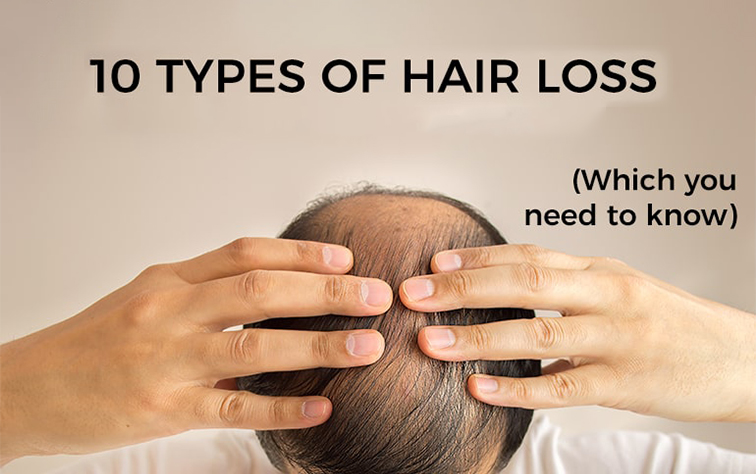 hair loss types