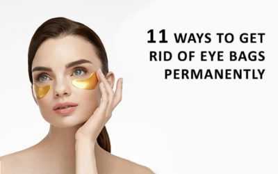 How to Get Rid of Eye Bags?