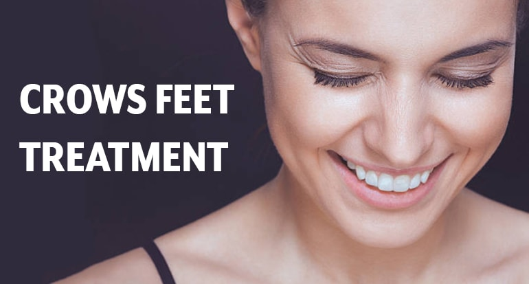 Crows Feet Treatment [Botox | Chemical Peels] By Using Laser