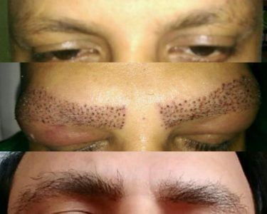 Eye-Brow-hair-transplant-min-1-375x300