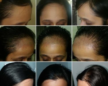 Fue-Hair-transplant-for-women-min-375x300