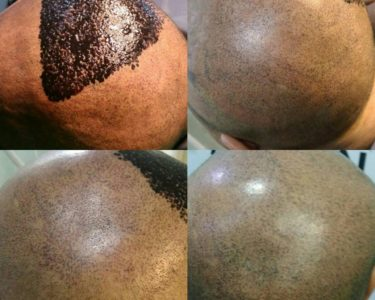Hair-Transplant-in-hyderabad-min-375x300 (1)