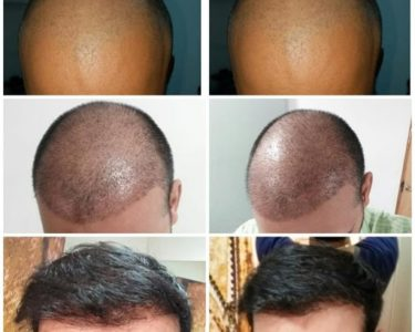 Hair-Transplant-in-hyderabad-min-375x300