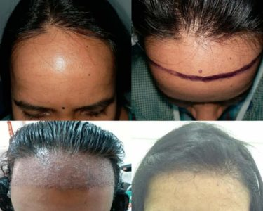 Hair-transplant-For-women-min-375x300