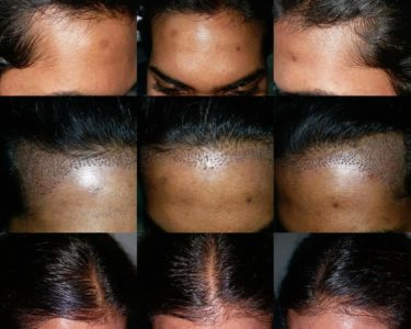 PRP-hair-treatment-min-375x300