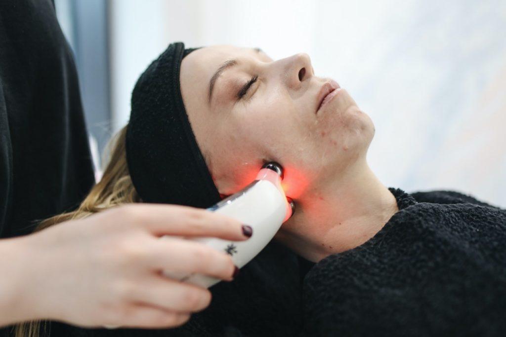 Laser Pimple Treatment